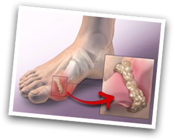 high uric acid in human body over the counter pill for gout what causes gout in the blood